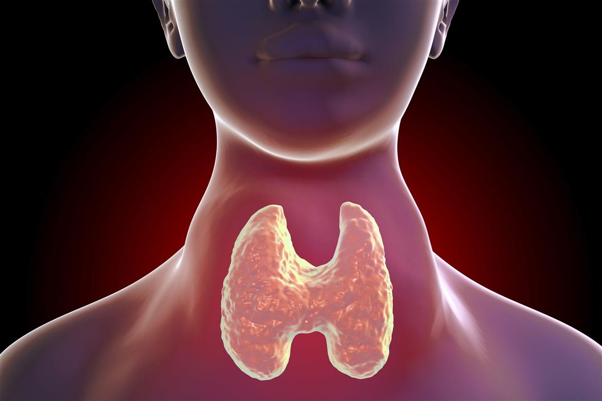 When Your Thyroid Gland Goes Into Overdrive Malaysia Daily News